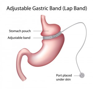 gastric bypass and diabetes