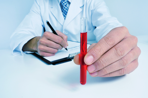 Blood Type AB May Be Type 2 Diabetes Risk Factor