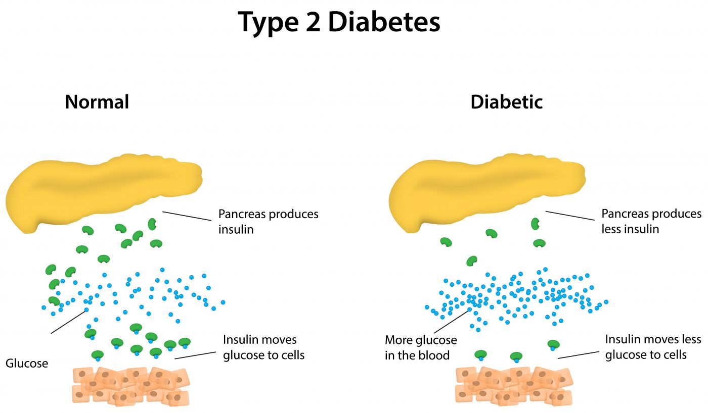 New Drug Screening Technology Identifies Azoramide as an Anti-diabetic Compound