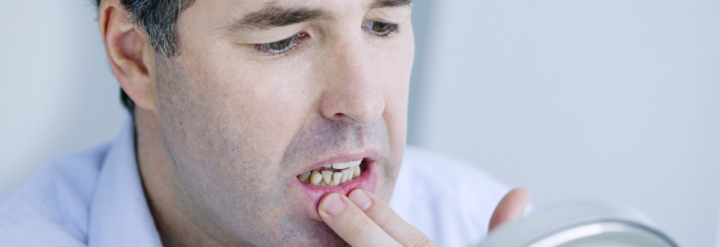 Diabetes Linked to Tooth Loss in US Adults, with Blacks at Highest Risk